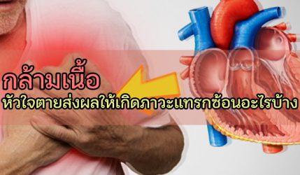 กล้ามเนื้อ หัวใจตายส่งผลให้เกิดภาวะแทรกซ้อนอะไรบ้าง