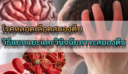 โรคหลอดเลือดสมองตีบ วิธีแยกแยะและวินิจฉัยภาวะสมองตีบ