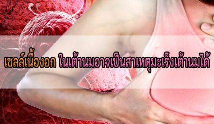 เซลล์เนื้องอก ในเต้านมอาจเป็นสาเหตุมะเร็งเต้านมได้